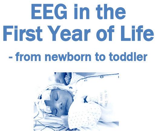 Neonatal EEG - 2022