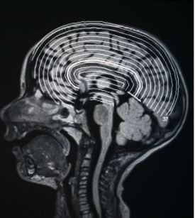 funky brain